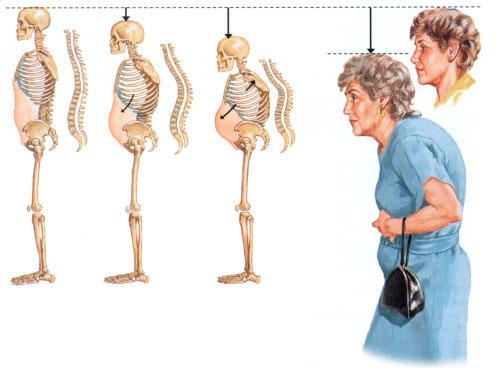 Курорт для лечения остеопороза -